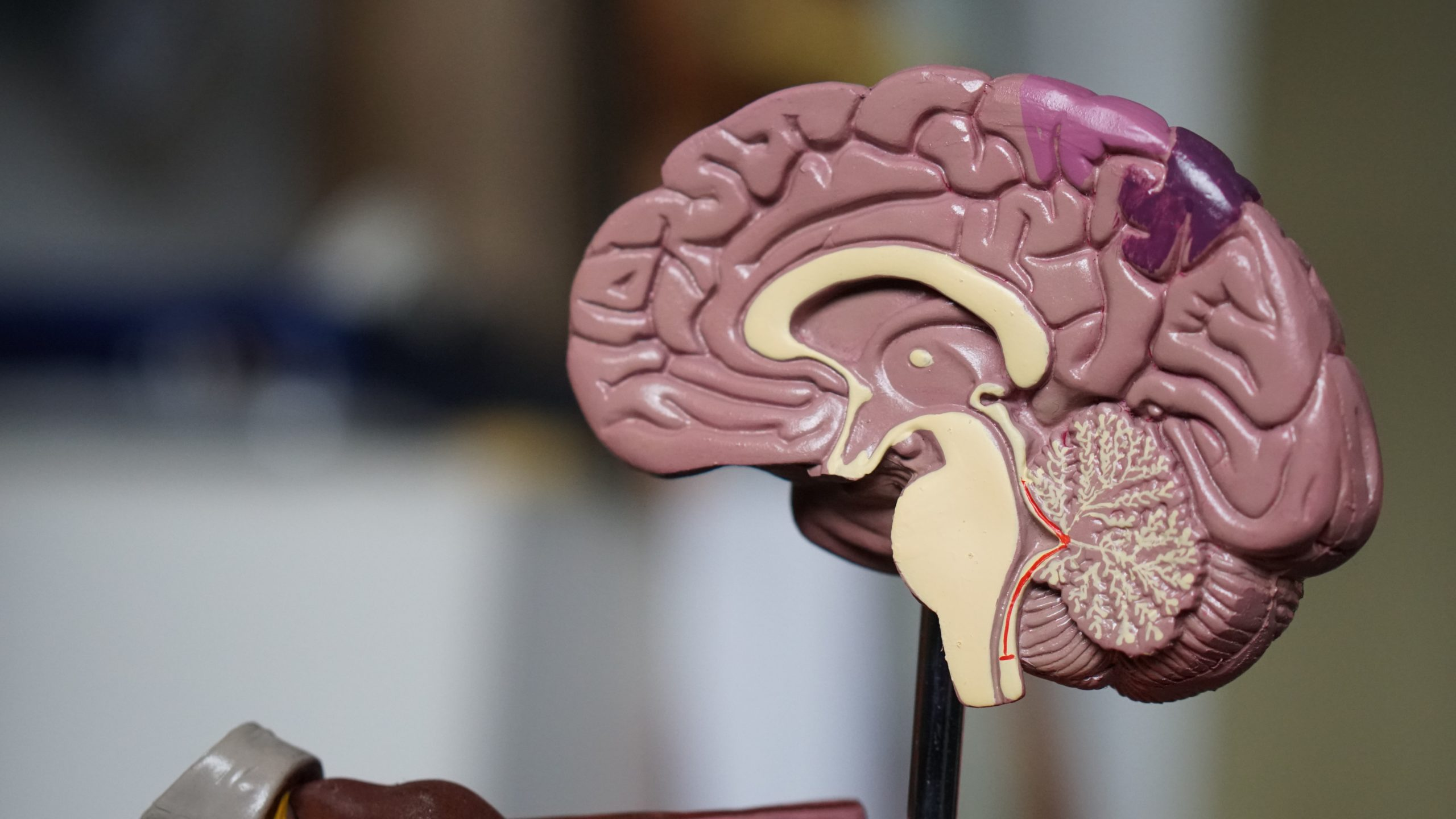 Photo d'un faux cerveau pour illustrer la sclérose en plaque, maladie touchant le cerveau